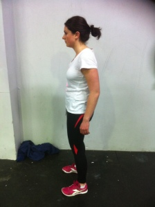 Classic Sway Back Posture with Shoulders Back Correction
